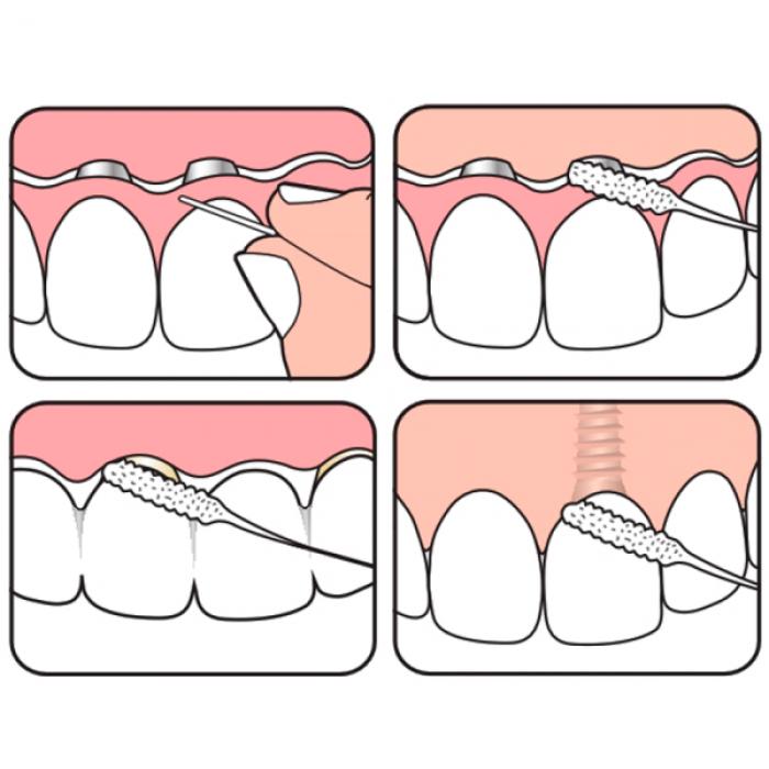 TePe Bridge and Implant floss межзубная нить для мостов и имплантов (30 шт)